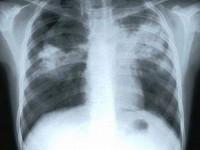 Strategia Națională de Control a Tuberculozei în România 2015-2020